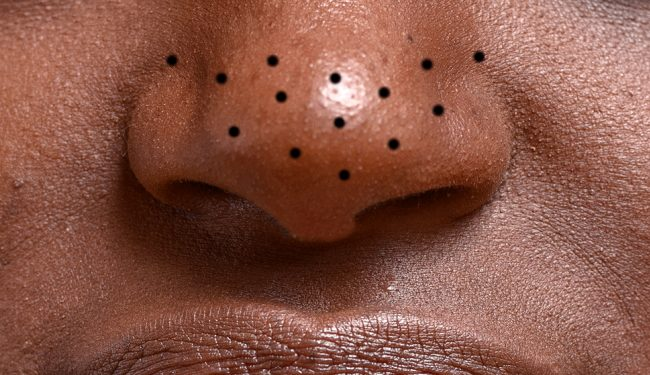 Get rid of blackheads on nose